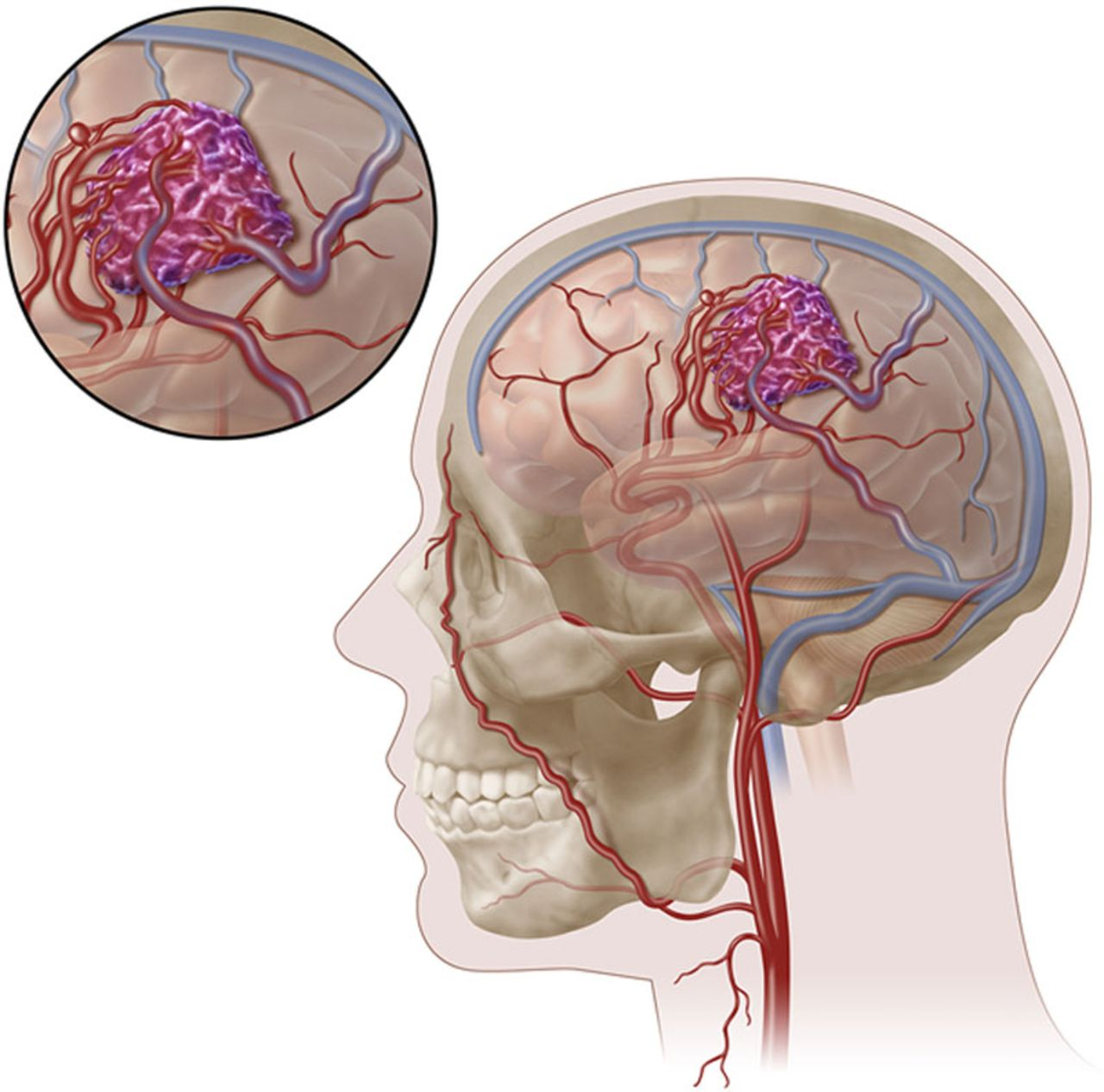 Management of Brain Arteriovenous Malformations: A Scientific