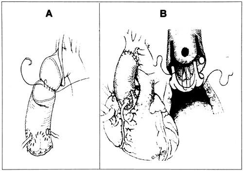 Opening And Closing Characteristics Of The Aortic Valve After