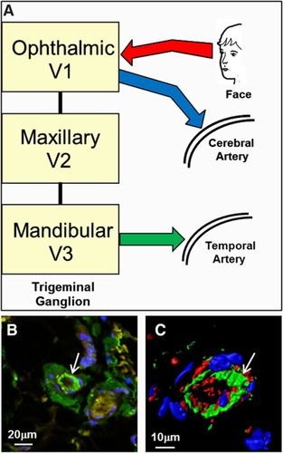 Biological Plausibility of a Link Between Arterial Ischemic Stroke
