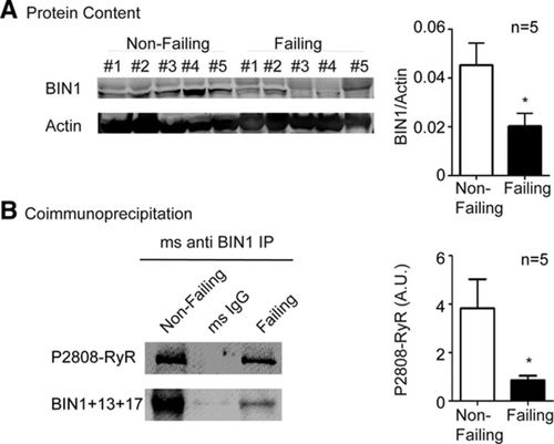 Isoproterenol Promotes Rapid Ryanodine Receptor Movement to Bridging