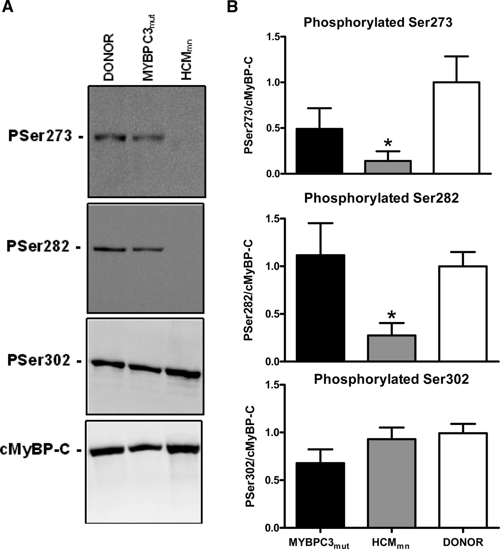 Contractile Dysfunction Irrespective Of The Mutant Protein