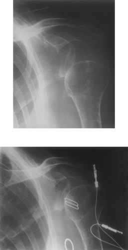 Prevention Of Shoulder Subluxation After Stroke With