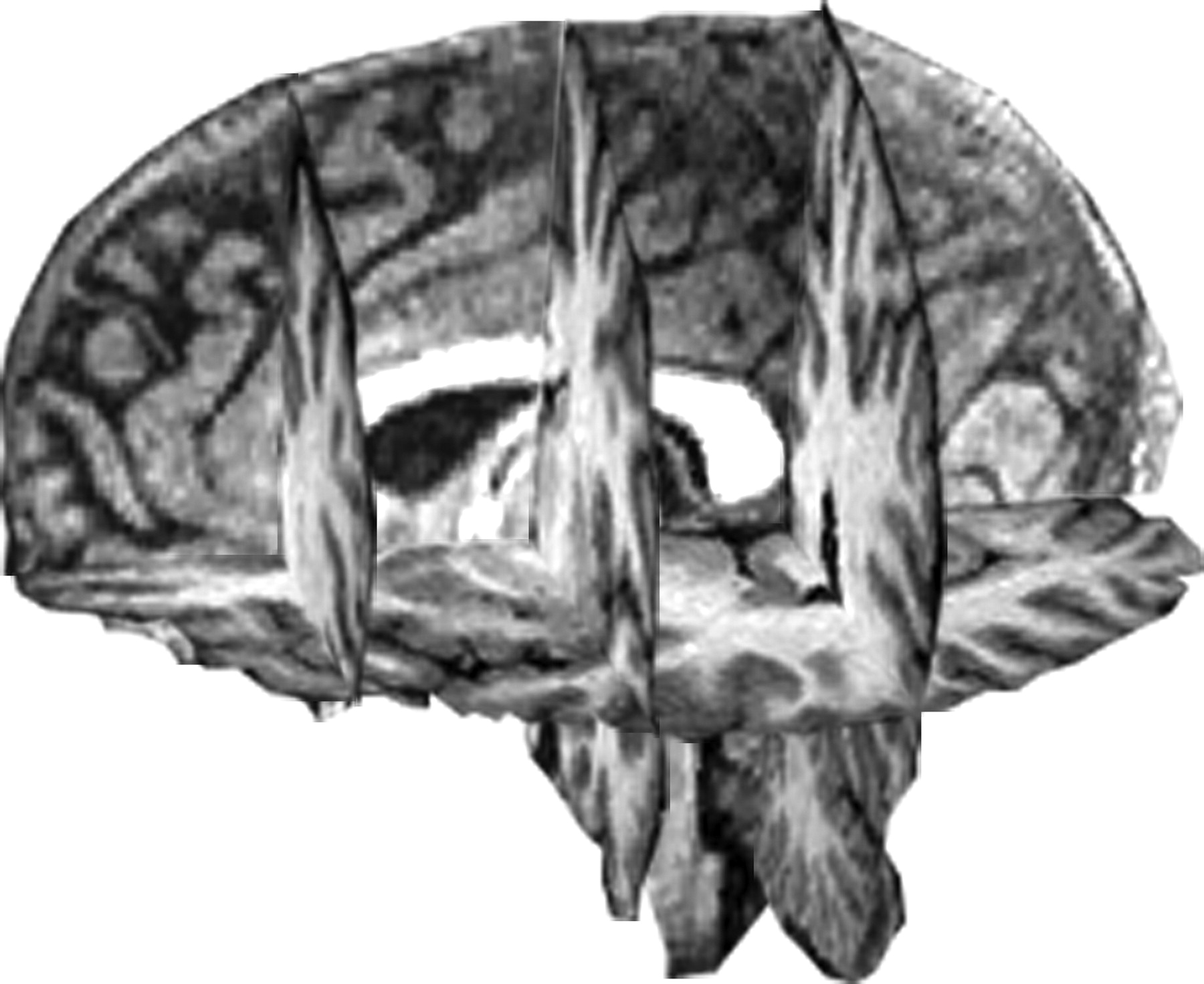 Differential Patterns of Cognitive Decline in Anterior and