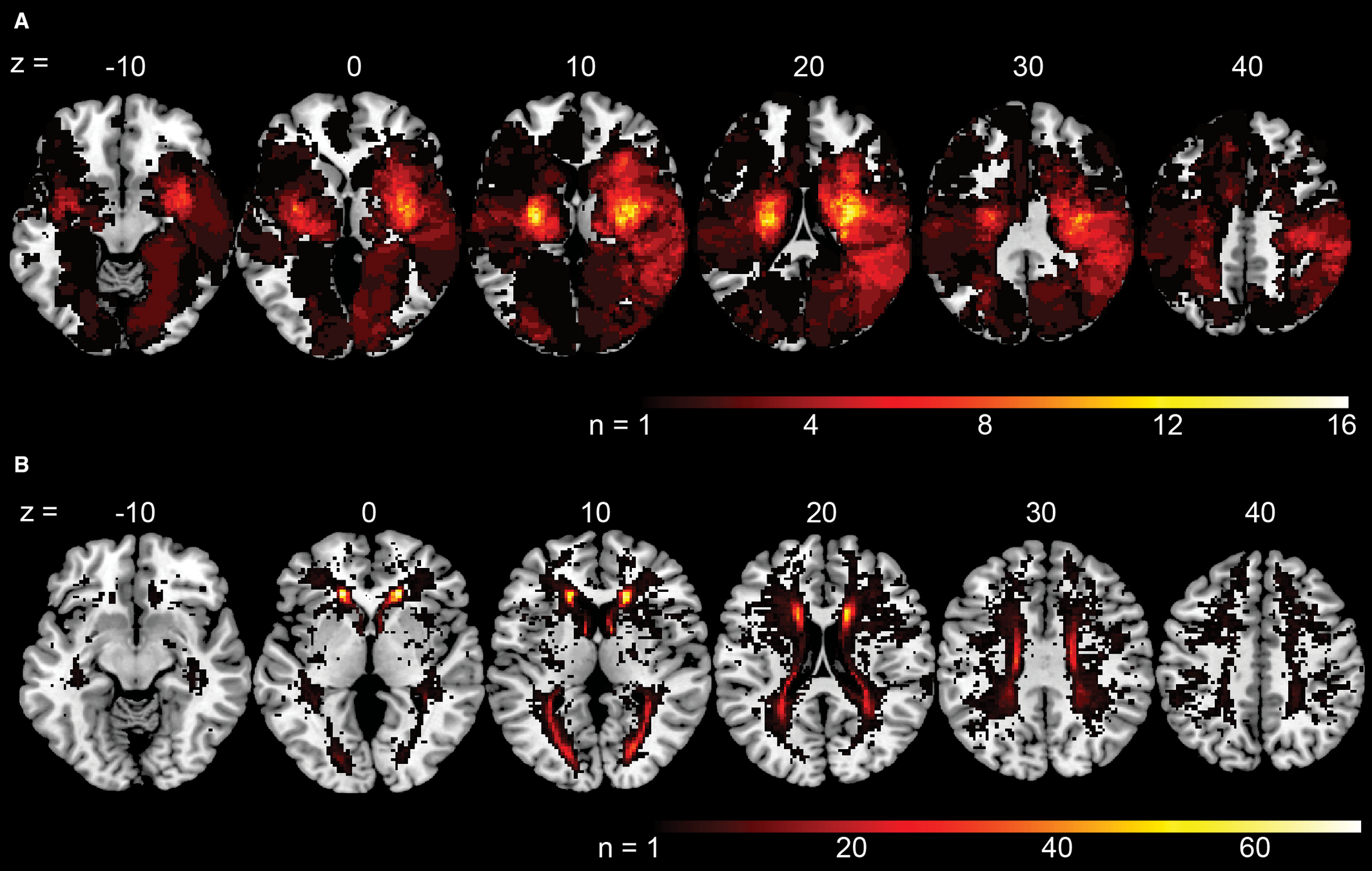 Differential Impact of Acute Lesions Versus White Matter
