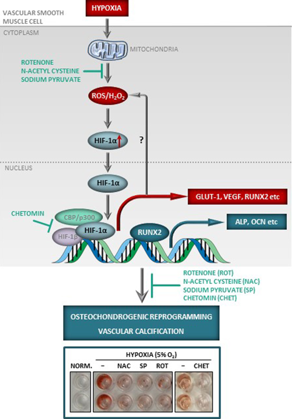 Hypoxia Triggers Osteochondrogenic Differentiation of Vascular