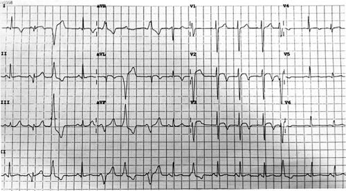 Chest Pain and Palpitations | Circulation