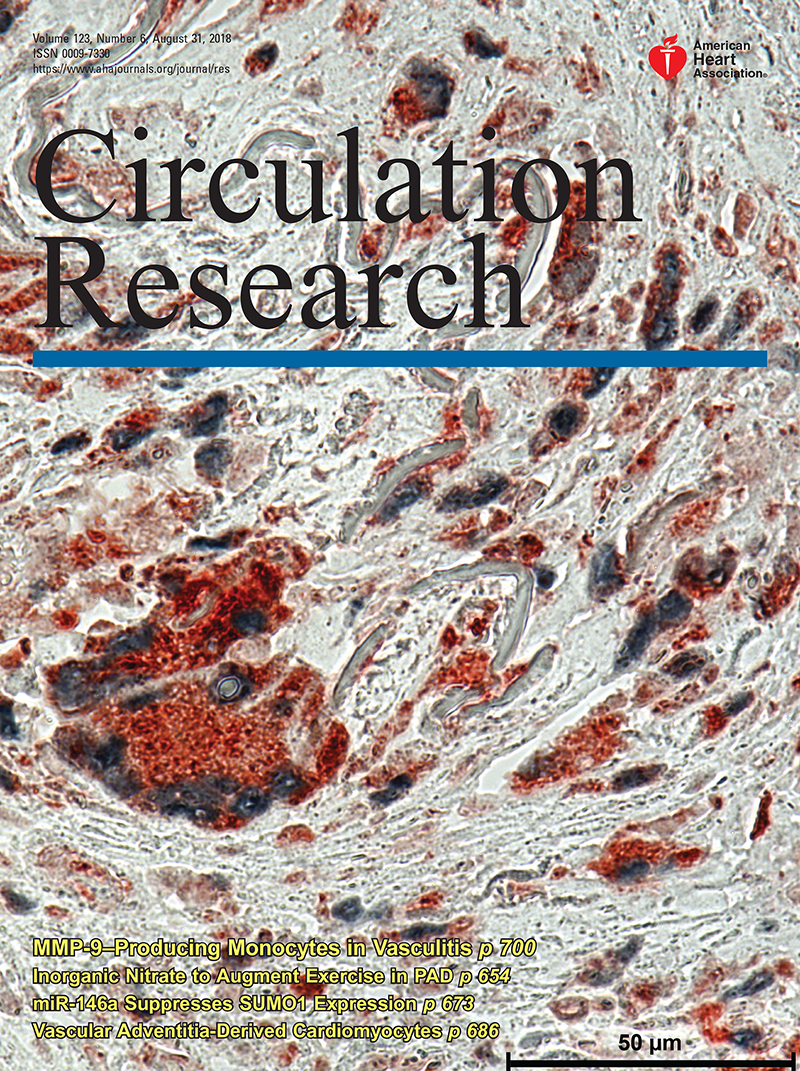 G-Protein–Coupled Receptors in Heart Disease | Circulation Research