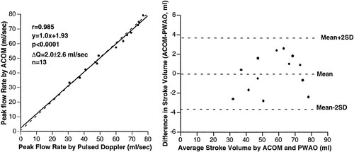 Automated Cardiac Output Measurement by Spatiotemporal