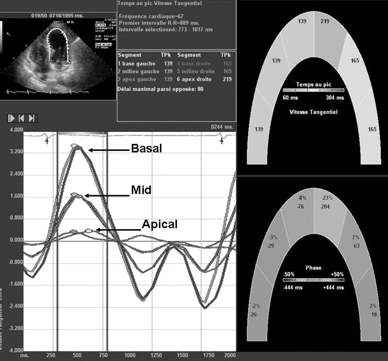 Abstract 2573: Usefulness of 2D Speckle Tracking Echocardiography