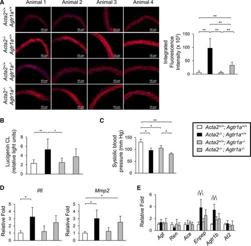 Loss of Smooth Muscle α-Actin Leads to NF-κB–Dependent Increased