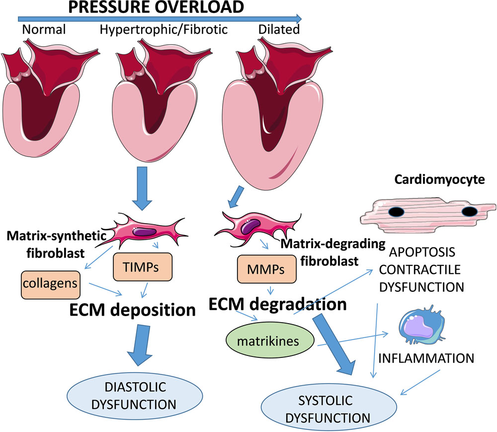 The Extracellular Matrix in Ischemic and Nonischemic Heart Failure
