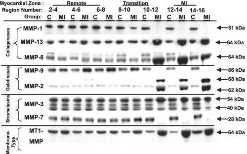 Region And Type Specific Induction Of Matrix Metalloproteinases In