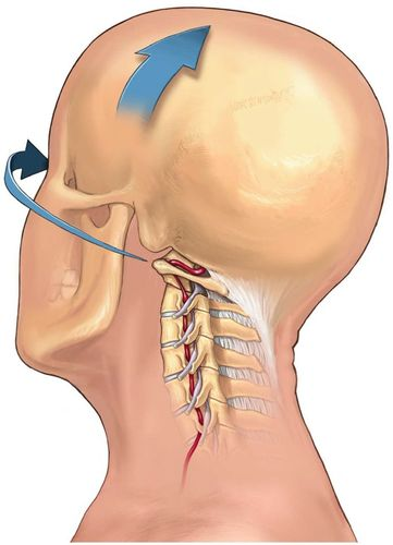 Cervical Arterial Dissections and Association With Cervical