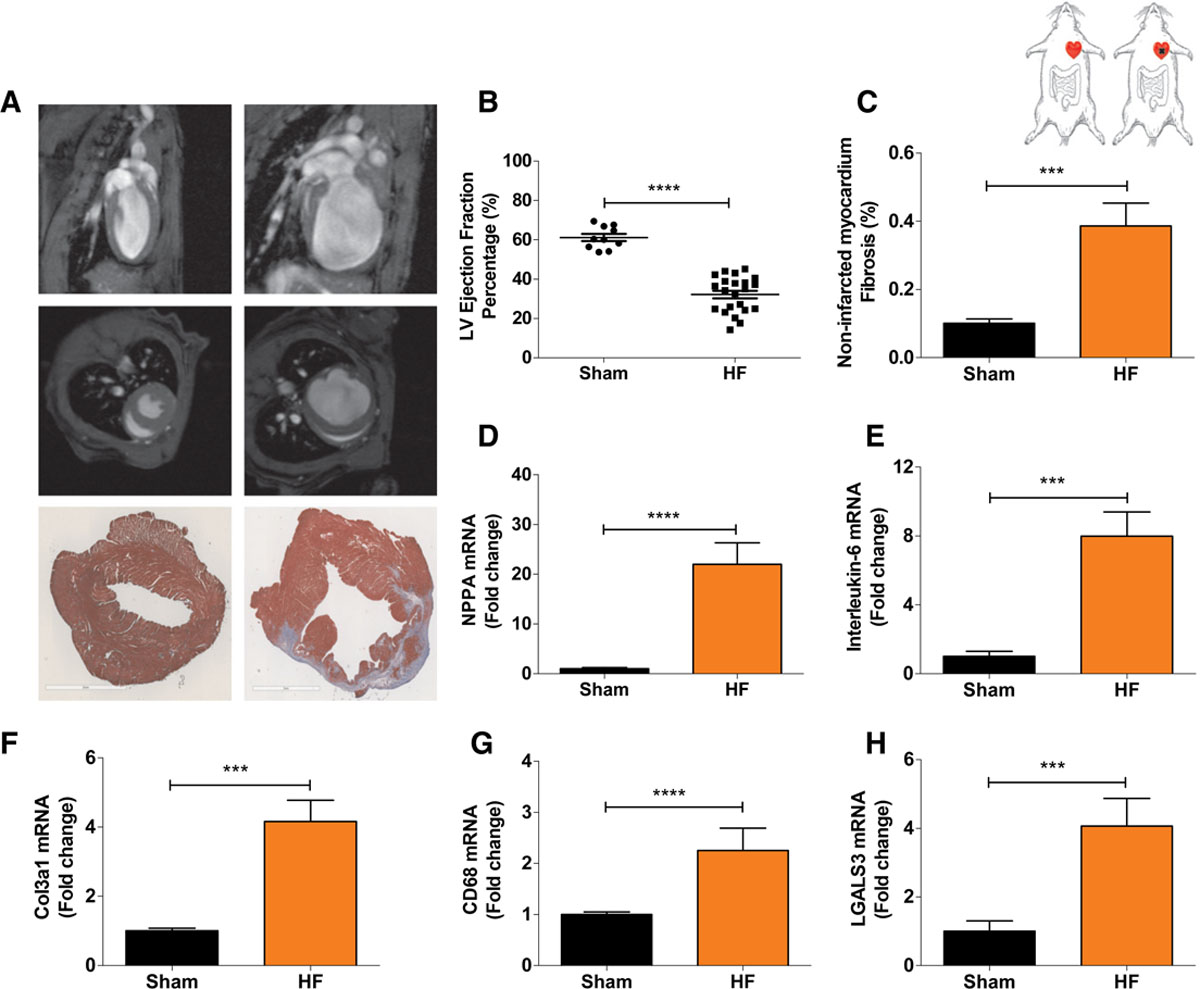Heart Failure Stimulates Tumor Growth by Circulating Factors