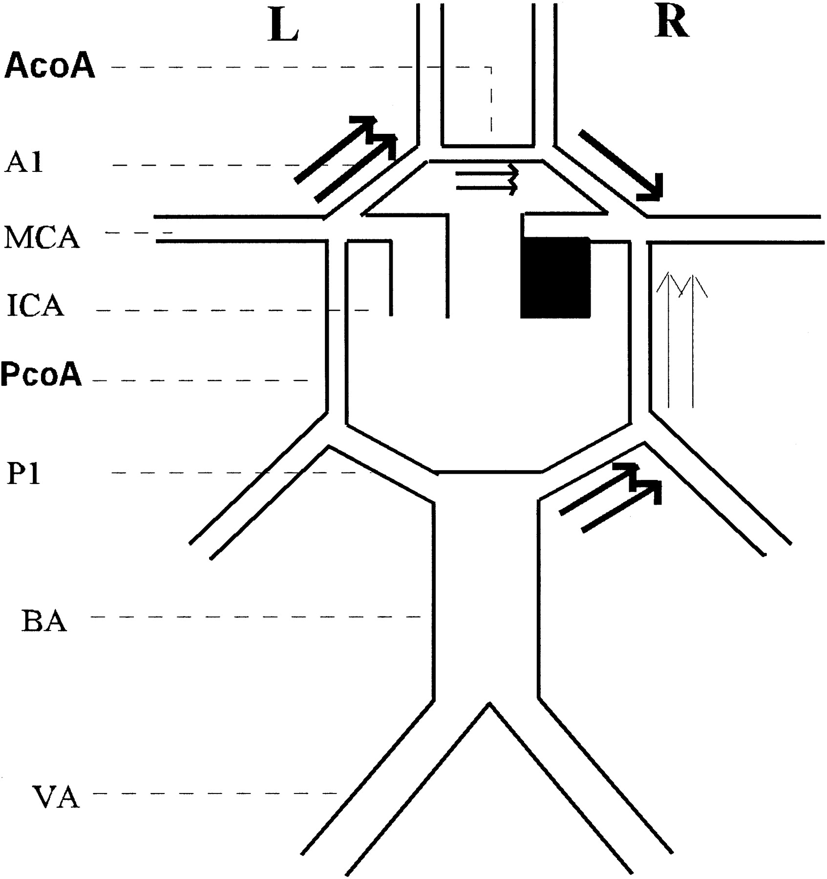 Collateral Variations in Circle of Willis in Atherosclerotic