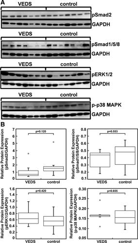 Transforming Growth Factor-β and Inflammation in Vascular