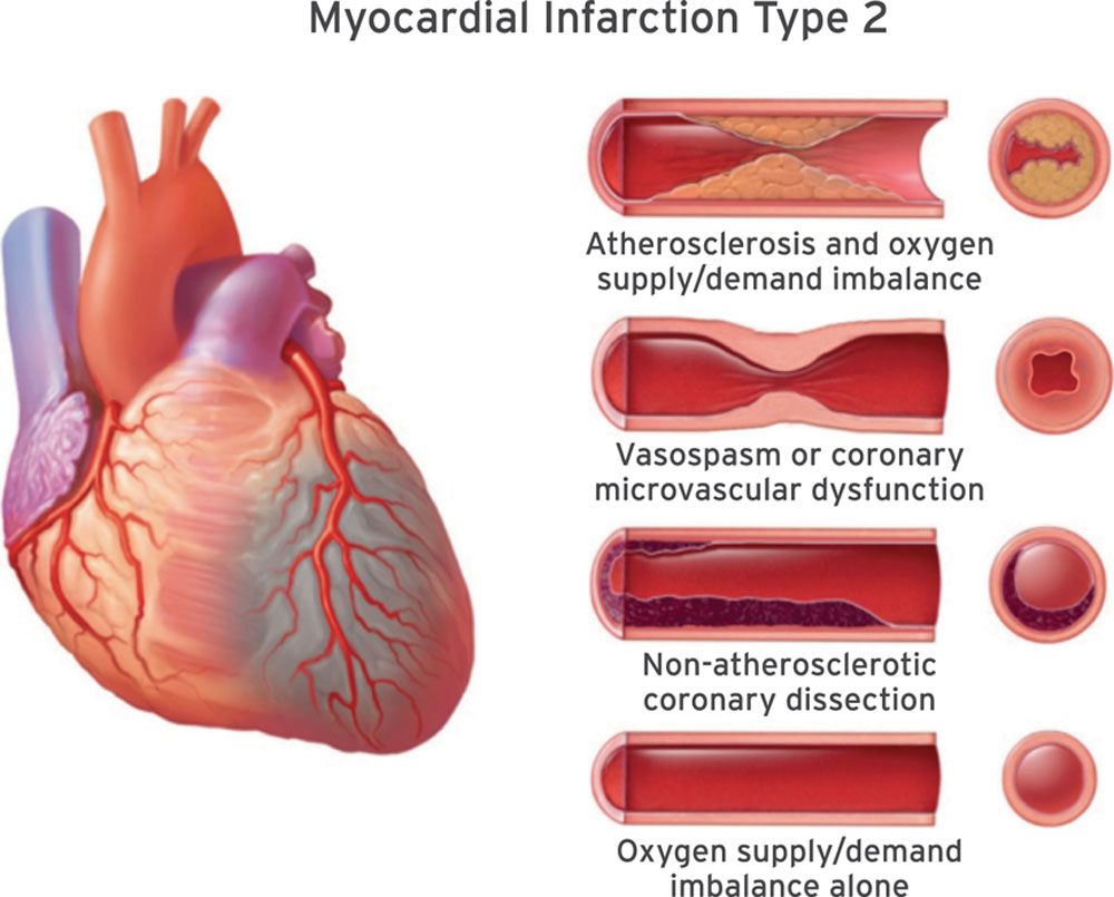 Fourth Universal Definition of Myocardial Infarction (2018