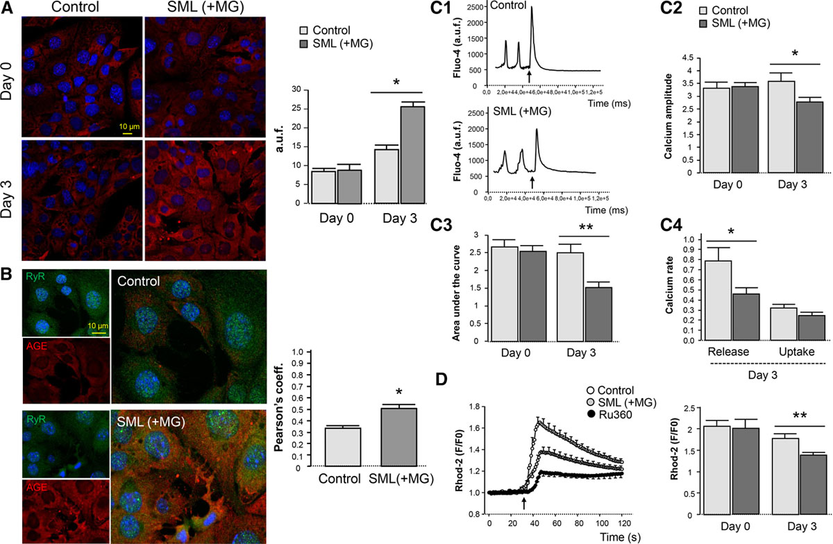 Ryanodine Receptor Glycation Favors Mitochondrial Damage in