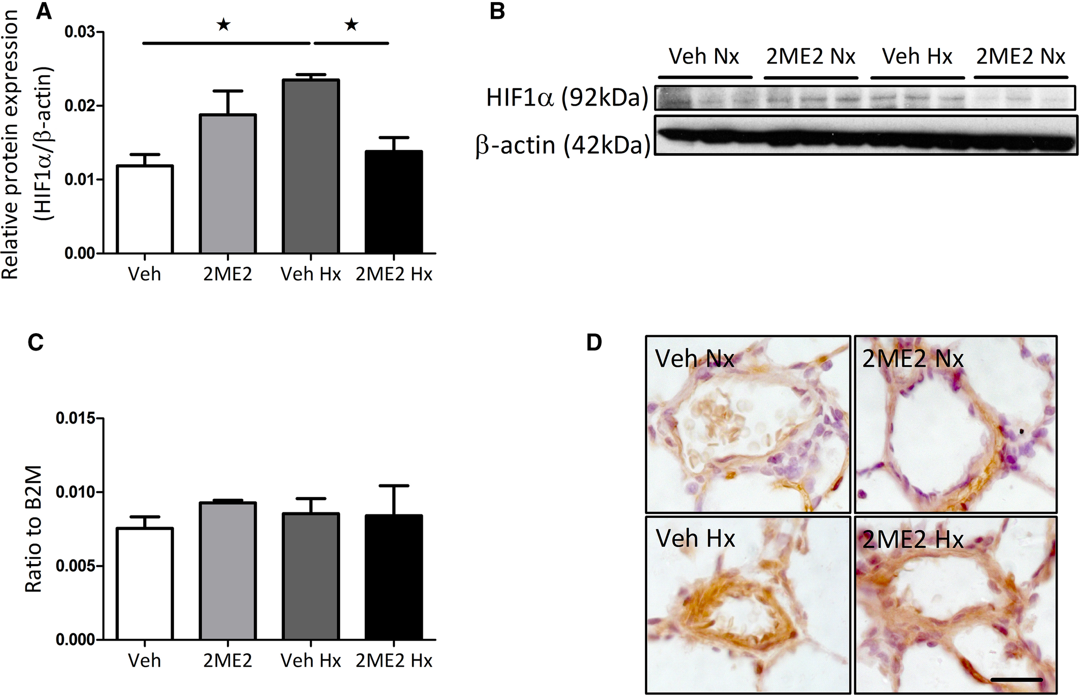 Influence of 2‐Methoxyestradiol and Sex on Hypoxia‐Induced