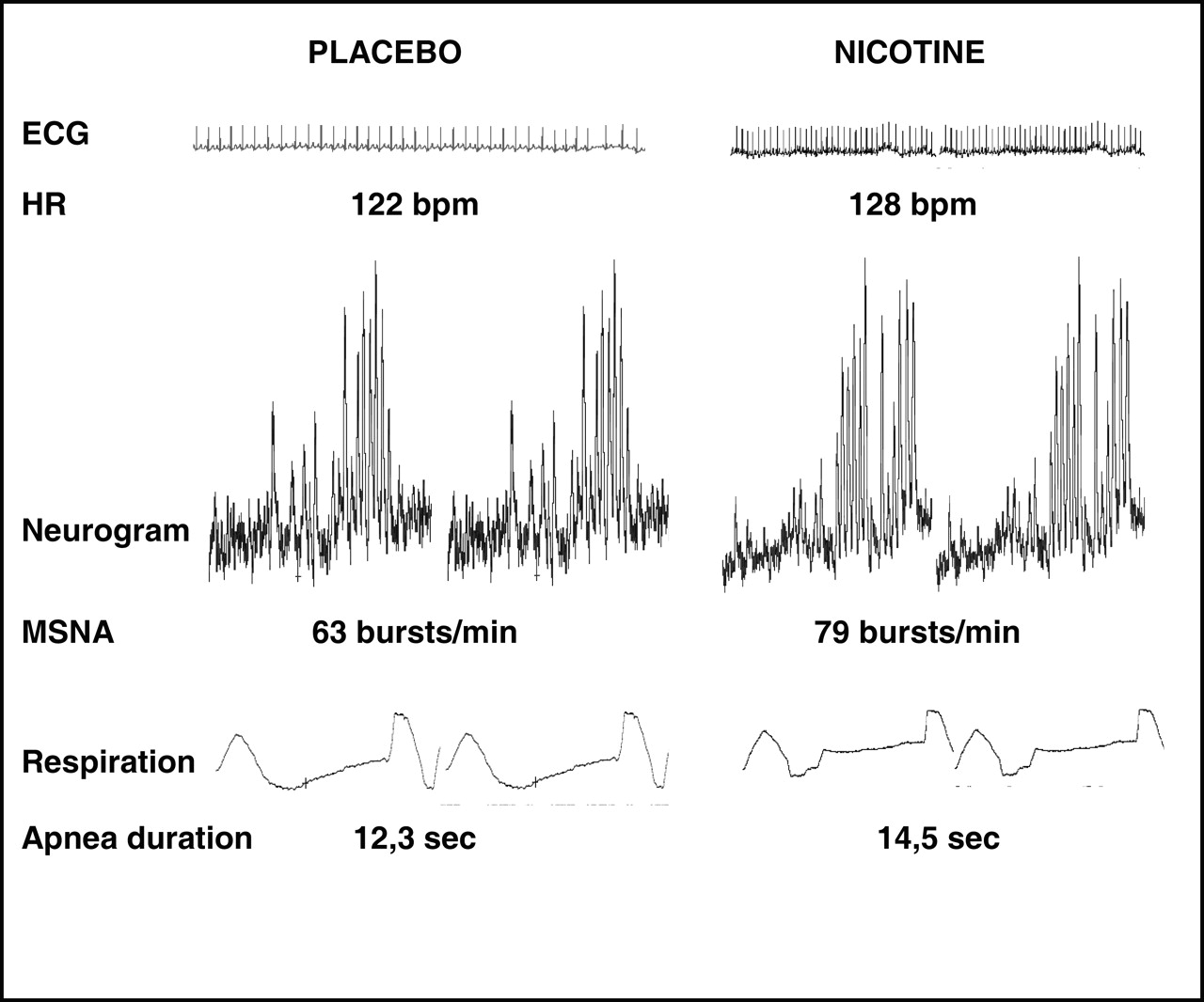 Acute Cardiovascular and Sympathetic Effects of Nicotine