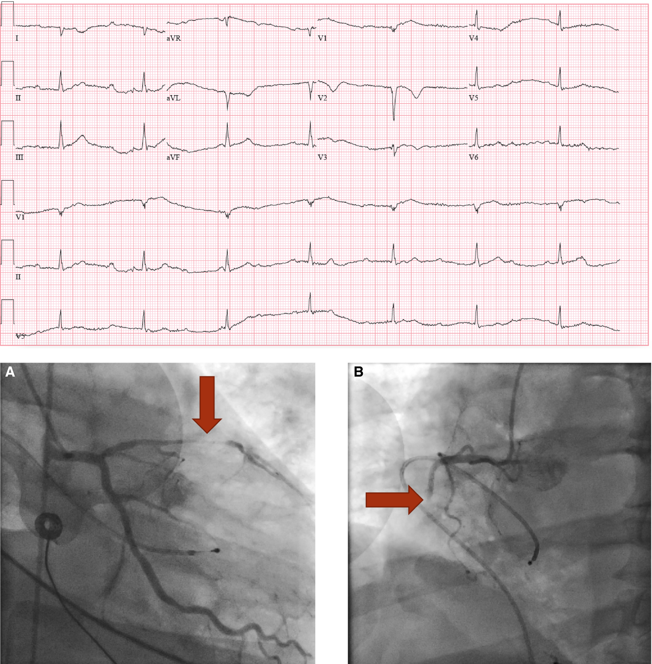 Cardiogenic Shock | Journal of the American Heart Association