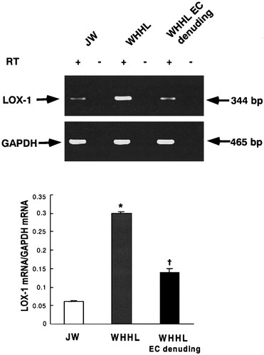 Increased Expression of Lectinlike Oxidized Low Density Lipoprotein