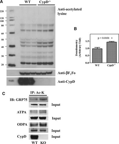 Cyclophilin D Modulates Mitochondrial Acetylome