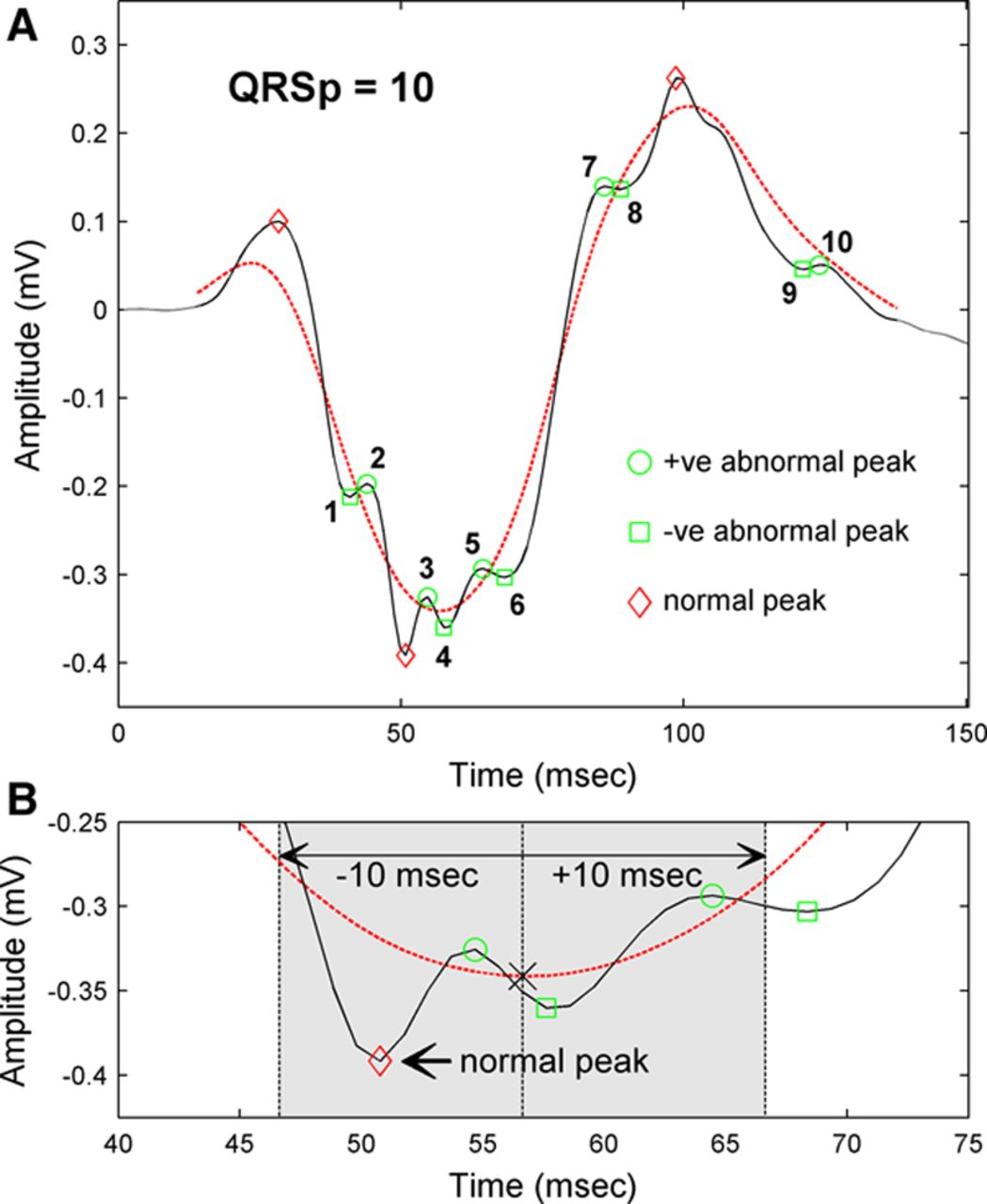 Automated Quantification of Low-Amplitude Abnormal QRS Peaks