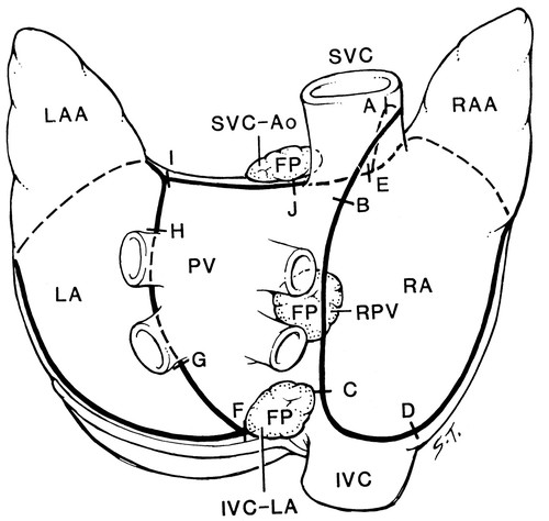 Efferent Vagal Innervation Of The Canine Atria And Sinus And