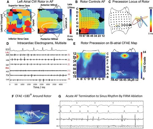 Panoramic Electrophysiological Mapping but not Electrogram
