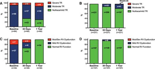 Effect Of Tricuspid Regurgitation And The Right Heart On