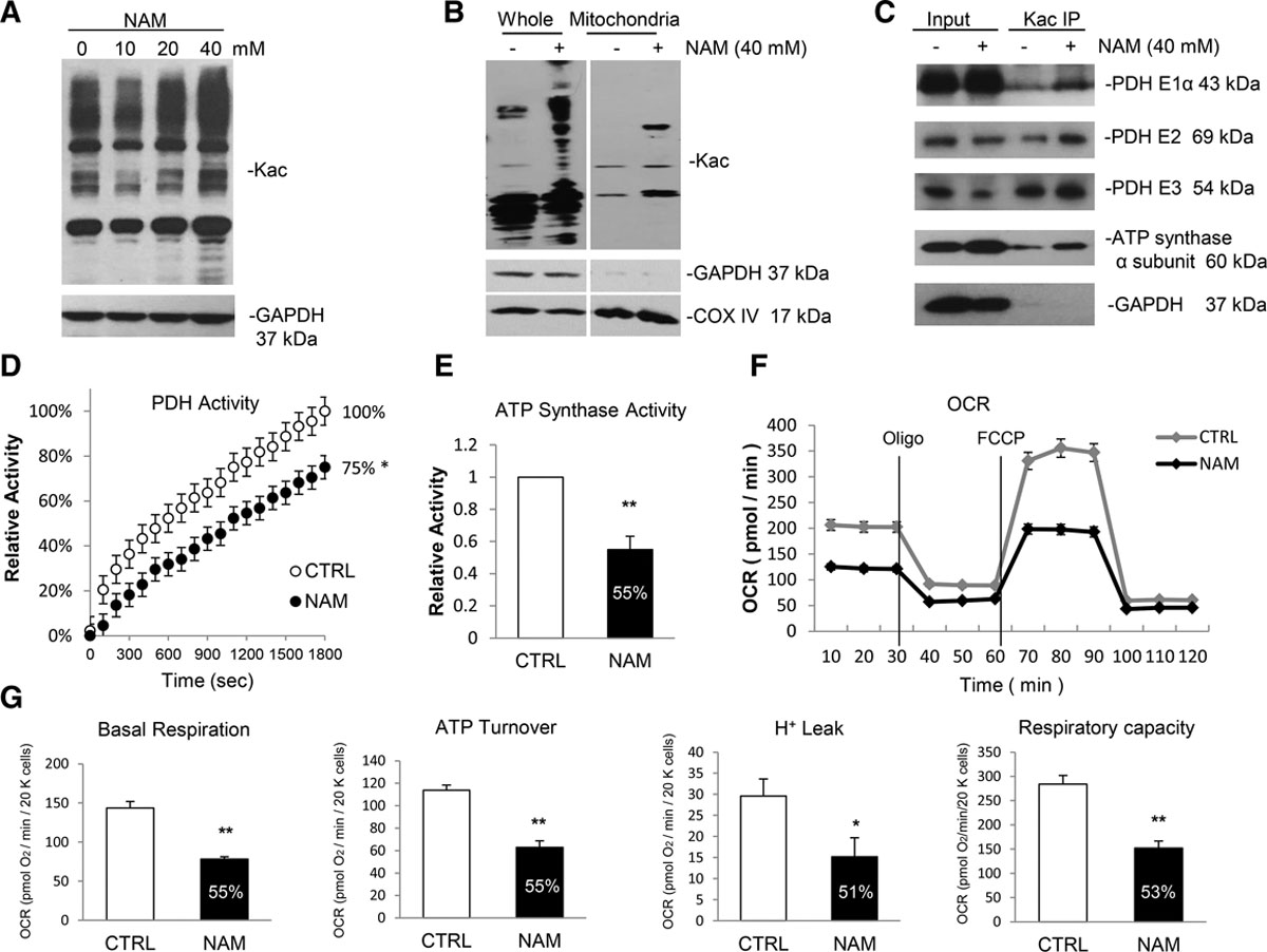 MicroRNA-195 Regulates Metabolism in Failing Myocardium Via