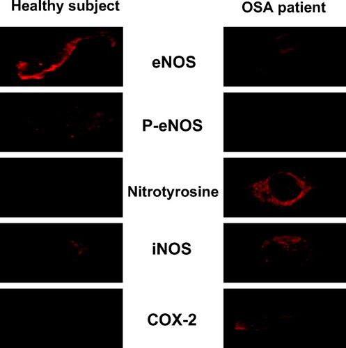 Inflammation, Oxidative Stress, and Repair Capacity of the Vascular