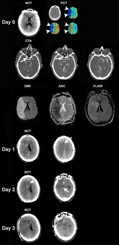 Recommendations for the Management of Cerebral and