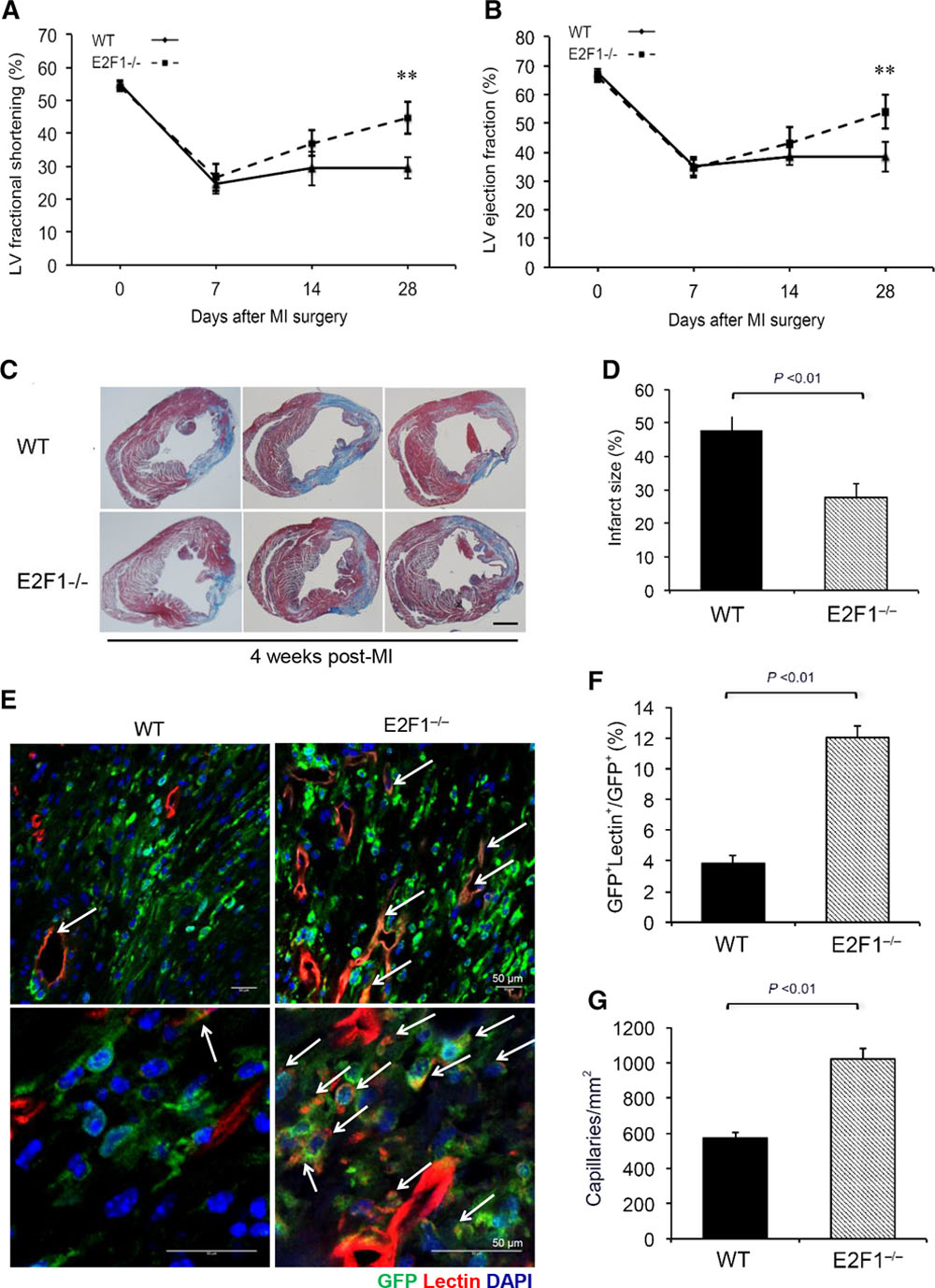 E2F1 Suppresses Oxidative Metabolism and Endothelial Differentiation