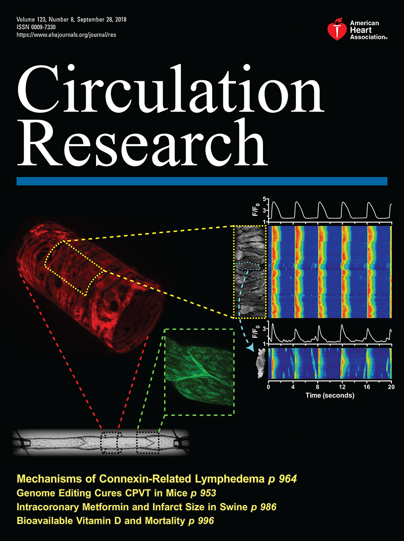 Mechanisms of Connexin-Related Lymphedema   Circulation Research