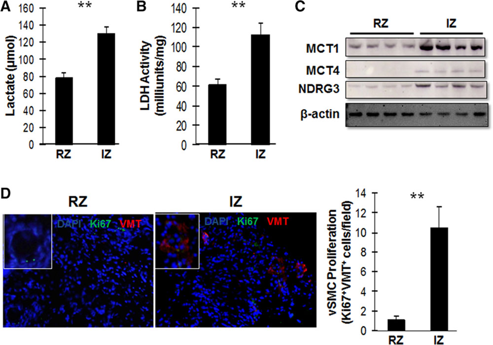 Lactate Promotes Synthetic Phenotype in Vascular Smooth