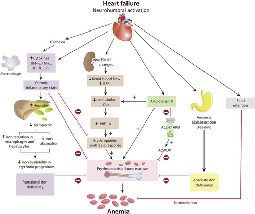 Anemia and Iron Deficiency in Heart Failure | Circulation