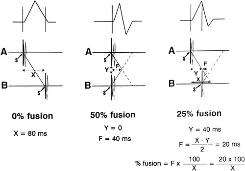 Analysis of the Degree of QRS Fusion Necessary for Its