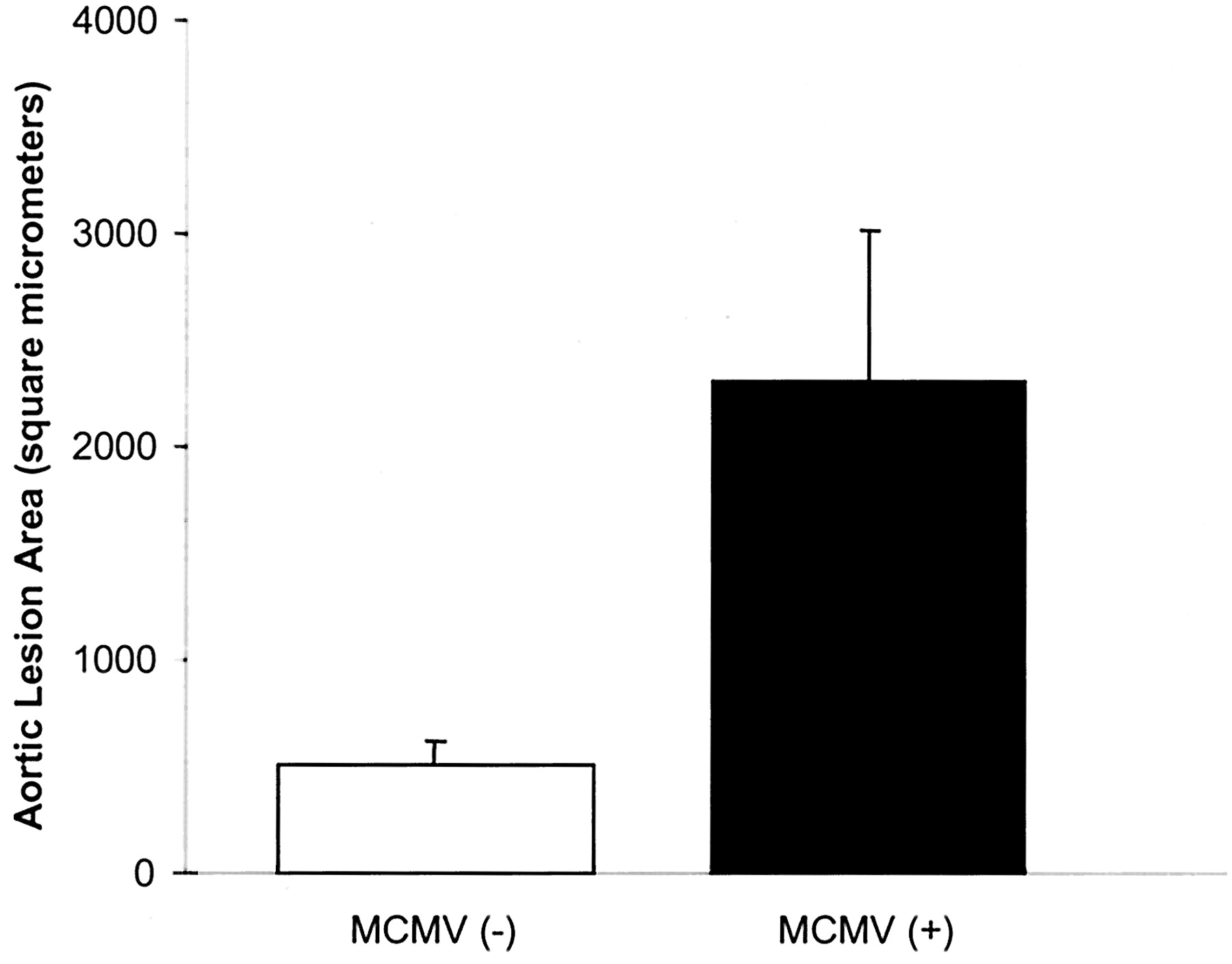 Murine Cytomegalovirus Infection Increases Aortic Expression of