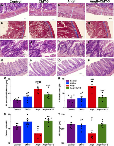 Microglial Cells Impact Gut Microbiota and Gut Pathology in