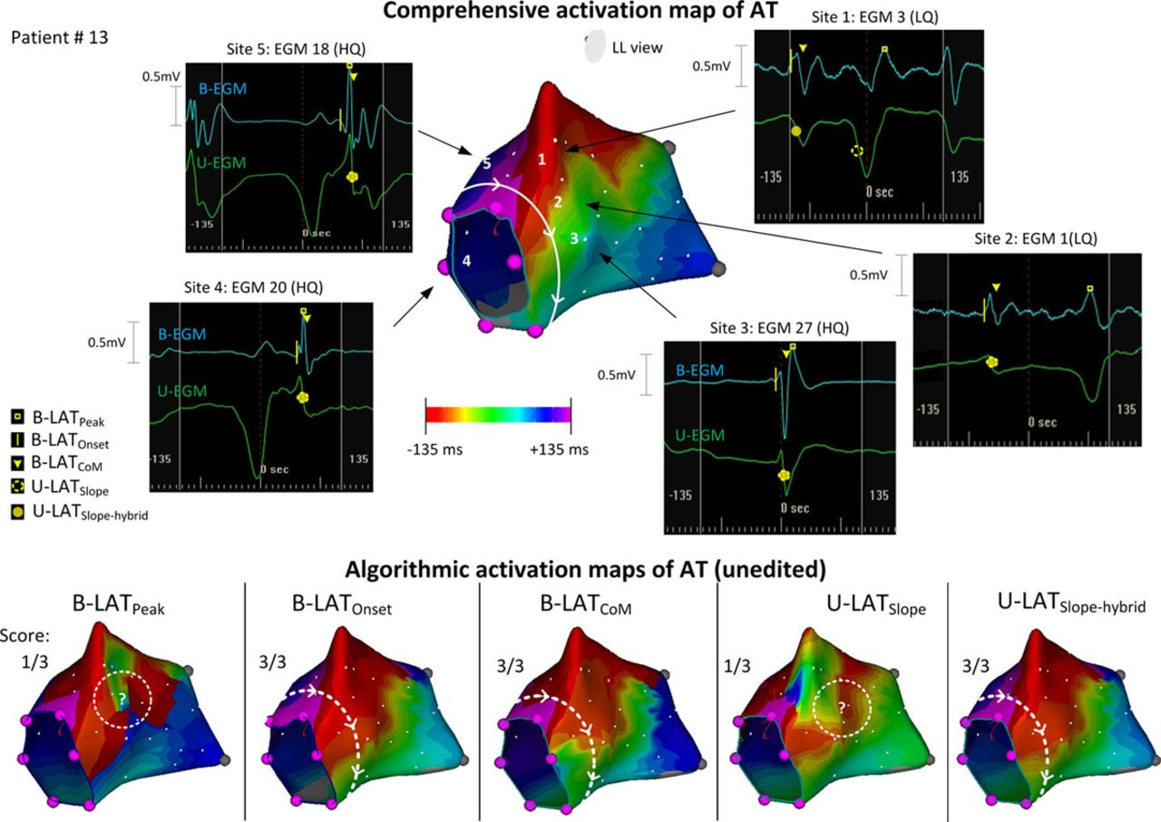 Novel Algorithmic Methods in Mapping of Atrial and