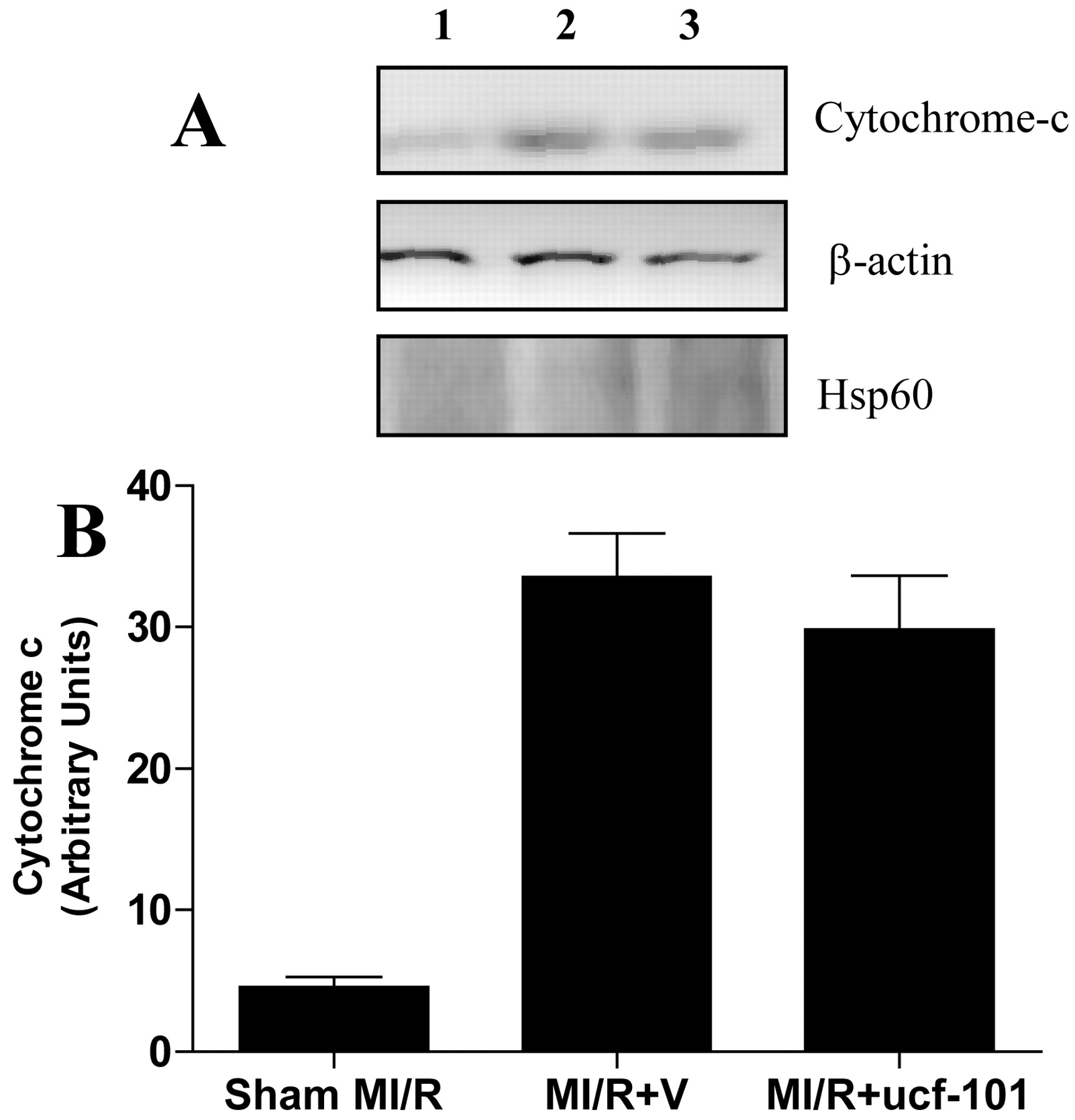 Role of Omi/HtrA2 in Apoptotic Cell Death After Myocardial