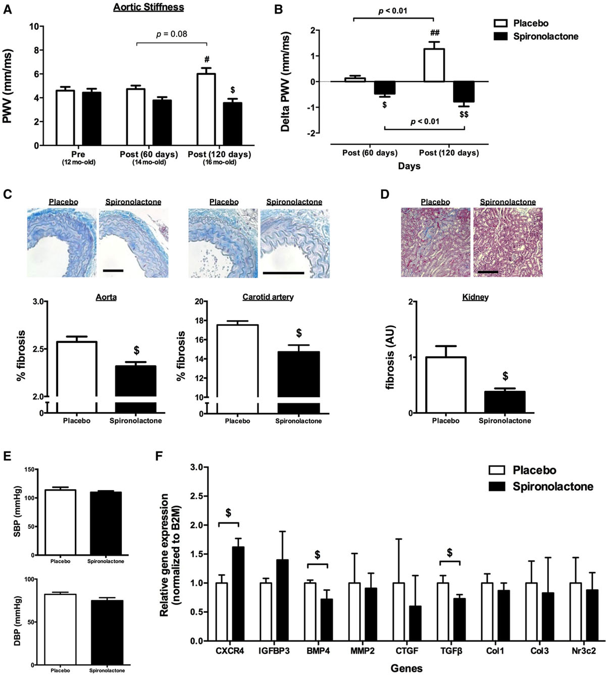 Smooth Muscle Cell–Mineralocorticoid Receptor as a Mediator of