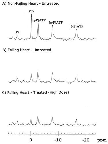 Enalapril Treatment Increases Cardiac Performance and Energy
