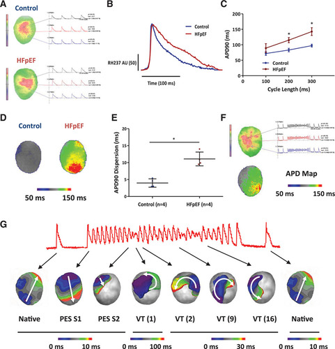Delayed Repolarization Underlies Ventricular Arrhythmias in
