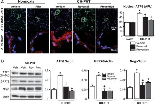Attenuating Endoplasmic Reticulum Stress as a Novel Therapeutic