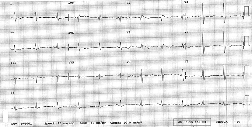 Brugada Type Electrocardiographic Changes Induced By Long