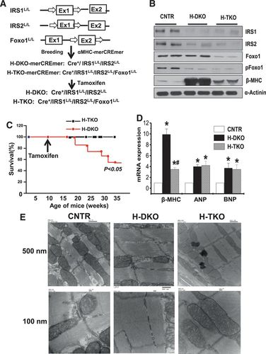 Activation of Foxo1 by Insulin Resistance Promotes Cardiac