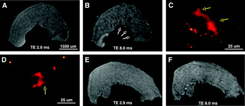Molecular MRI Detects Low Levels of Cardiomyocyte Apoptosis in a
